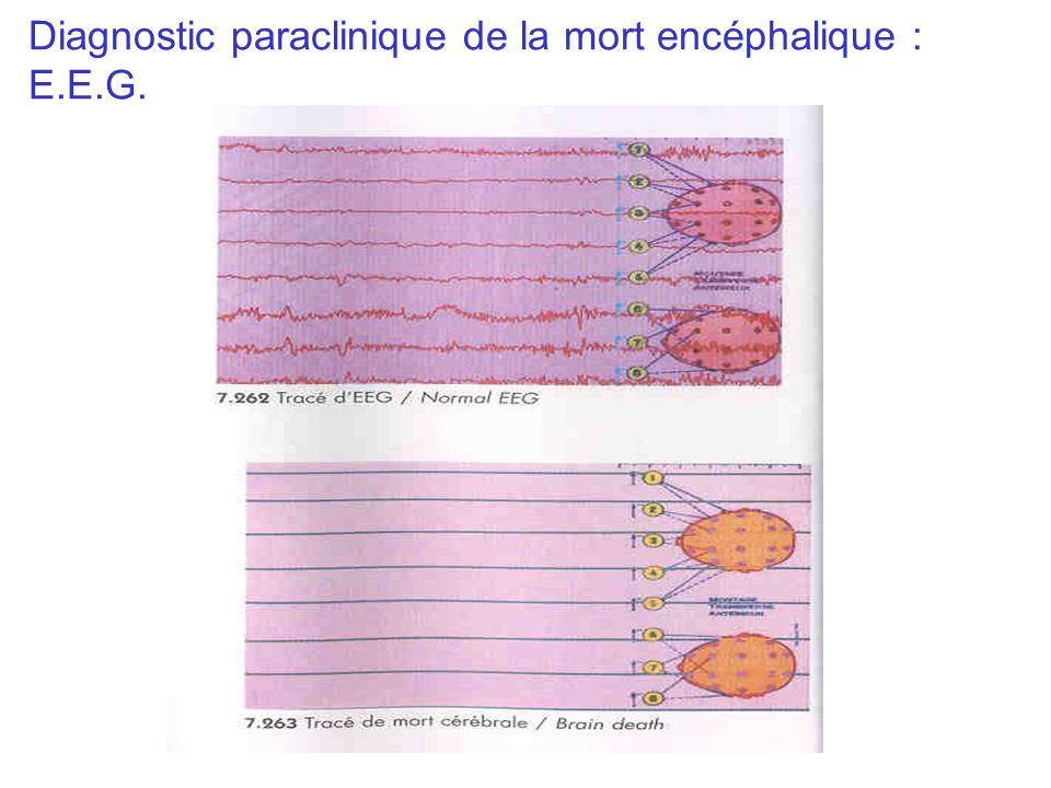 Diagnostic paraclinique de la mort encéphalique : E.E.G.