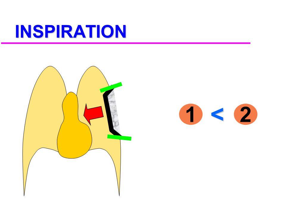 1 2 1 2 Pressions - Sous le volet - Atmosphérique POSITION DE REPOS