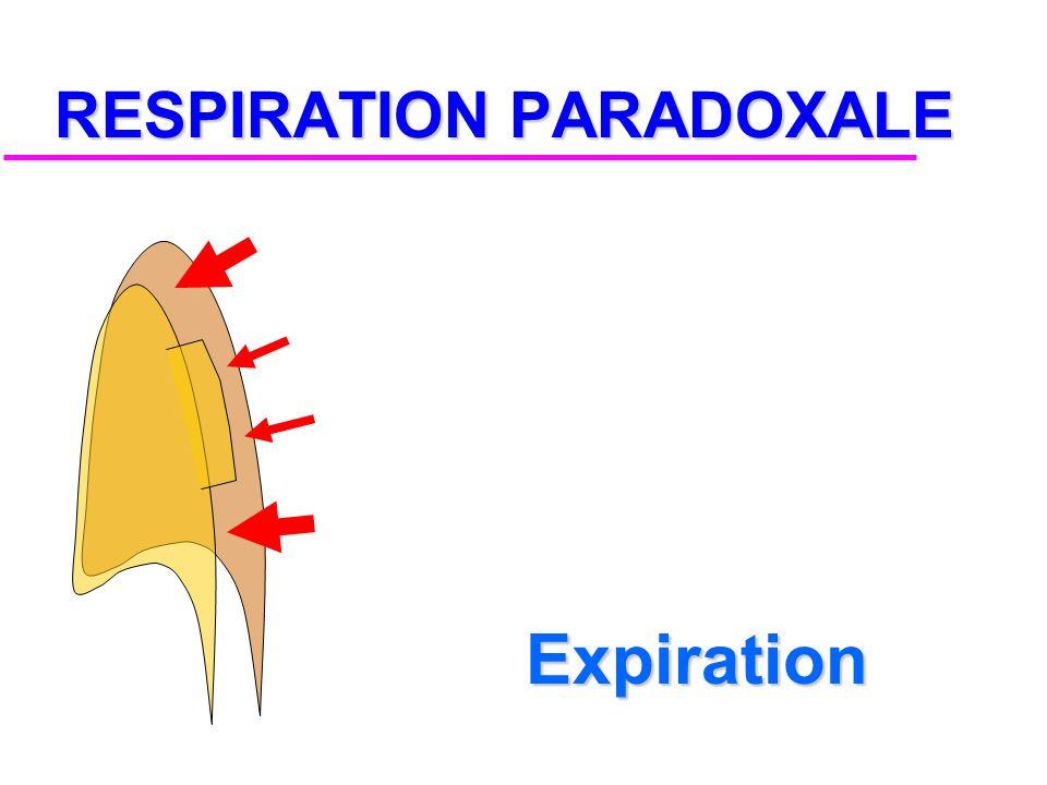 RESPIRATION PARADOXALE REPOS