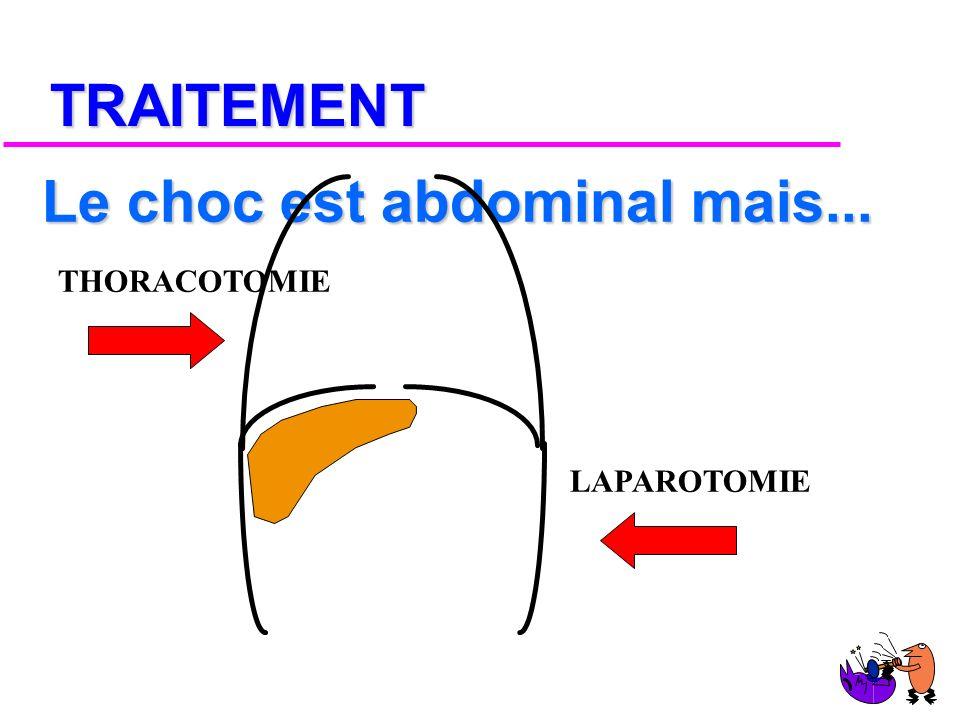 DIAGNOSTIC (2) u PNEUMOPERITOINE u ECHOGRAPHIE u TDM ATTENTION AUX FAUX + et -