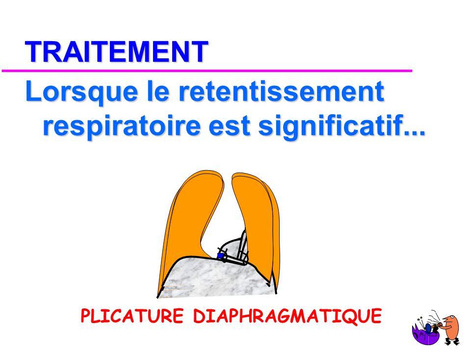 DIAGNOSTIC « C est toujours le PNEUMOPERITOINE »