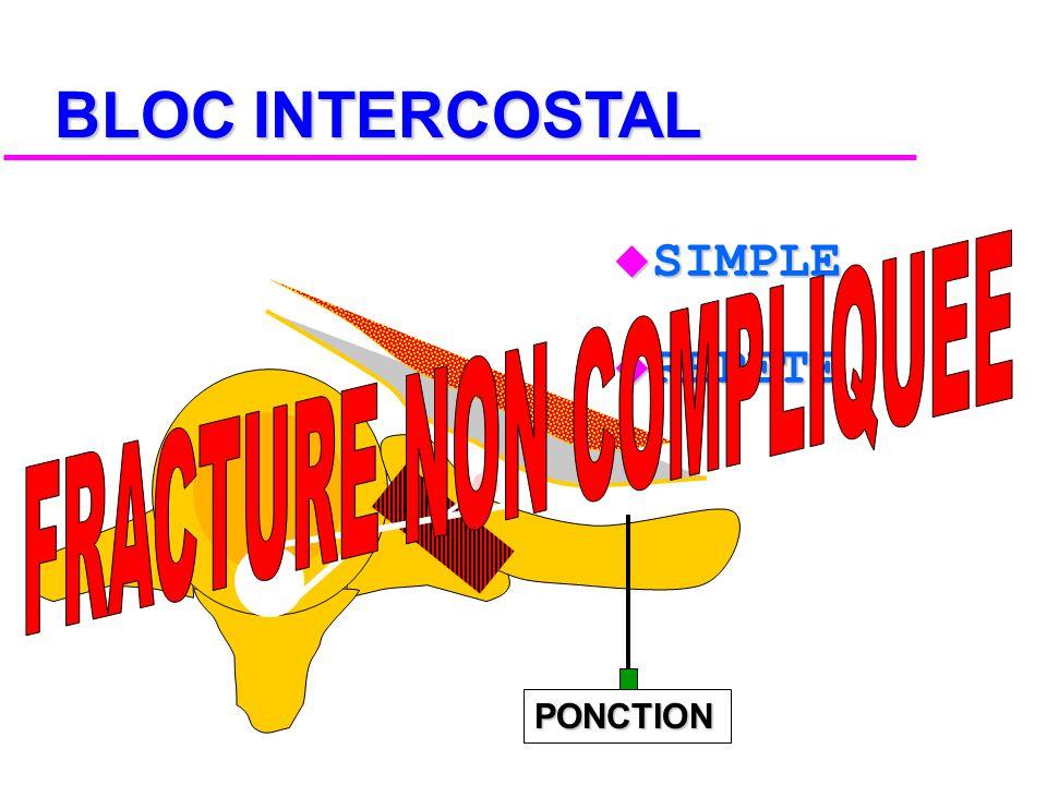 LOCO-REGIONALE INTRAPLEURALE INTERCOSTALE PARAVERTEBRAL PERIDURALE