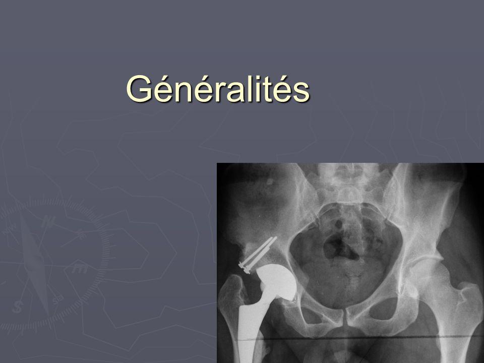 Reconstruction Greffe osseuse Greffe osseuse Autologue Autologue Allogreffe Allogreffe Armature Armature