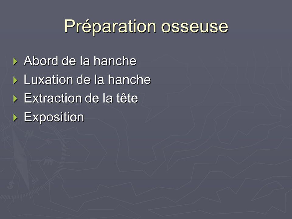 Préparation osseuse Abord de la hanche Abord de la hanche Luxation de la hanche Luxation de la hanche Extraction de la tête Extraction de la tête Expo
