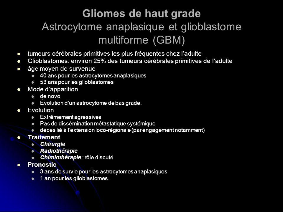 Gliomes de haut grade Astrocytome anaplasique et glioblastome multiforme (GBM) tumeurs cérébrales primitives les plus fréquentes chez ladulte Glioblas