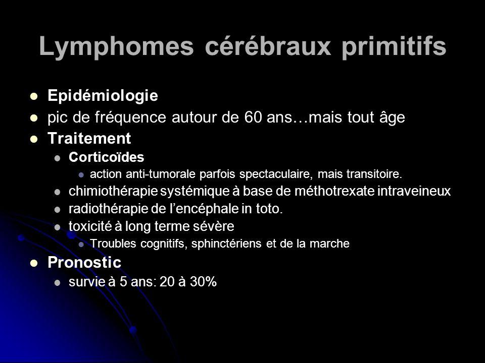 Lymphomes cérébraux primitifs Epidémiologie pic de fréquence autour de 60 ans…mais tout âge Traitement Corticoïdes action anti-tumorale parfois specta