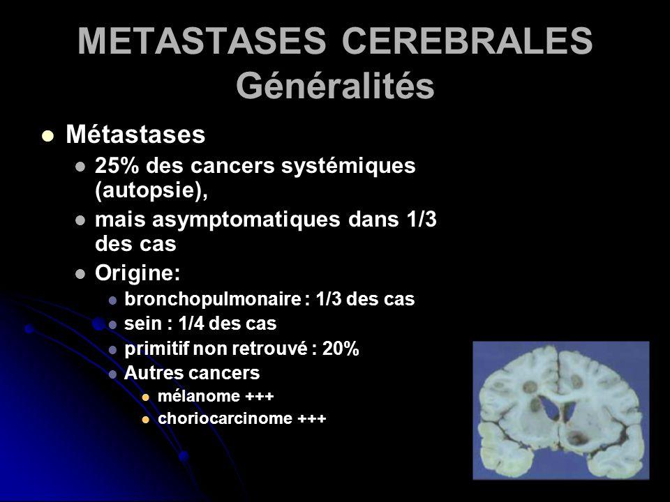 METASTASES CEREBRALES Généralités Métastases 25% des cancers systémiques (autopsie), mais asymptomatiques dans 1/3 des cas Origine: bronchopulmonaire