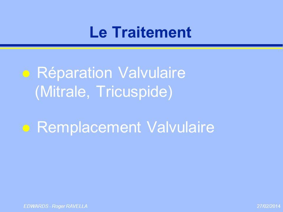 27/02/2014EDWARDS - Roger RAVELLA Le Traitement l Réparation Valvulaire (Mitrale, Tricuspide) l Remplacement Valvulaire