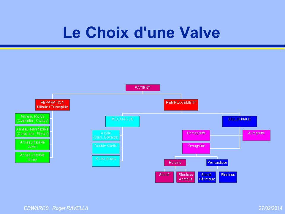 27/02/2014EDWARDS - Roger RAVELLA Le Choix d'une Valve