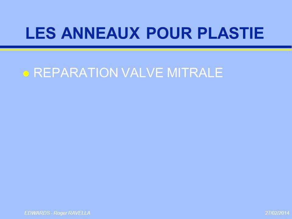 27/02/2014EDWARDS - Roger RAVELLA LES ANNEAUX POUR PLASTIE l REPARATION VALVE MITRALE