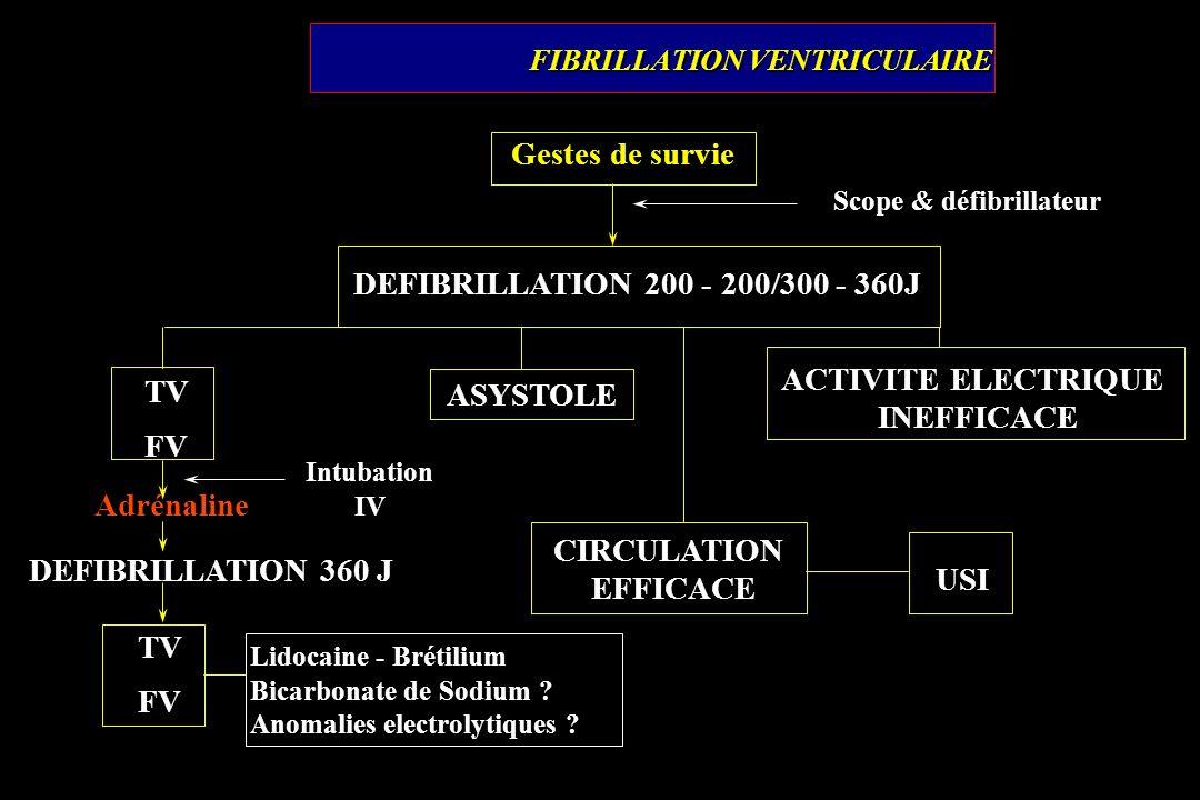 FIBRILLATION VENTRICULAIRE Gestes de survie Scope & défibrillateur DEFIBRILLATION 200 - 200/300 - 360J TV FV Intubation IV DEFIBRILLATION 360 J TV FV