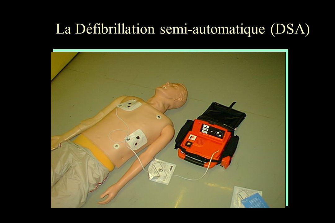 La Défibrillation semi-automatique (DSA)