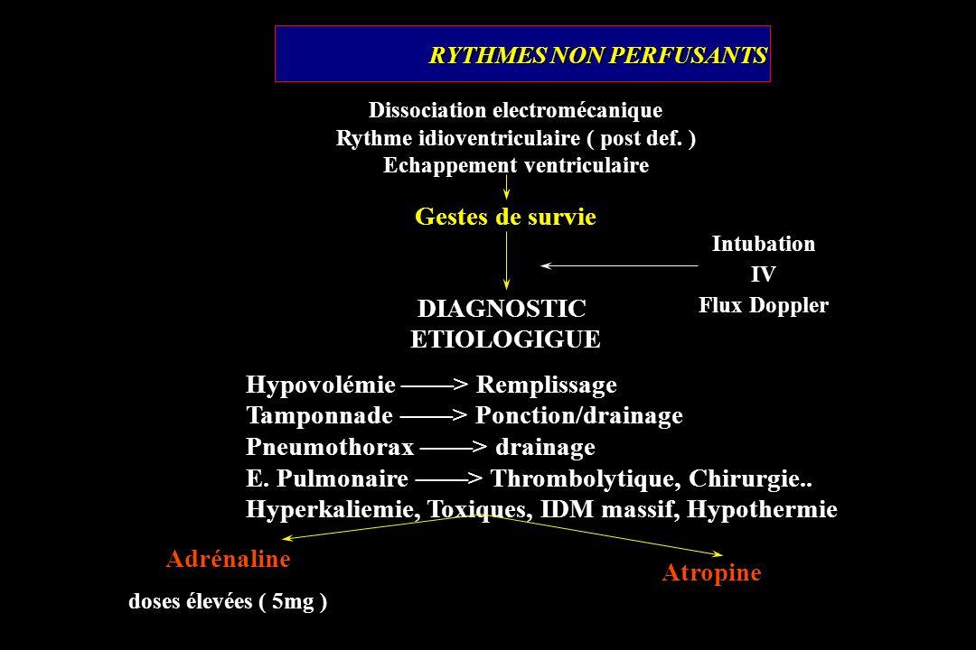 RYTHMES NON PERFUSANTS Gestes de survie Intubation IV Flux Doppler Dissociation electromécanique Rythme idioventriculaire ( post def. ) Echappement ve