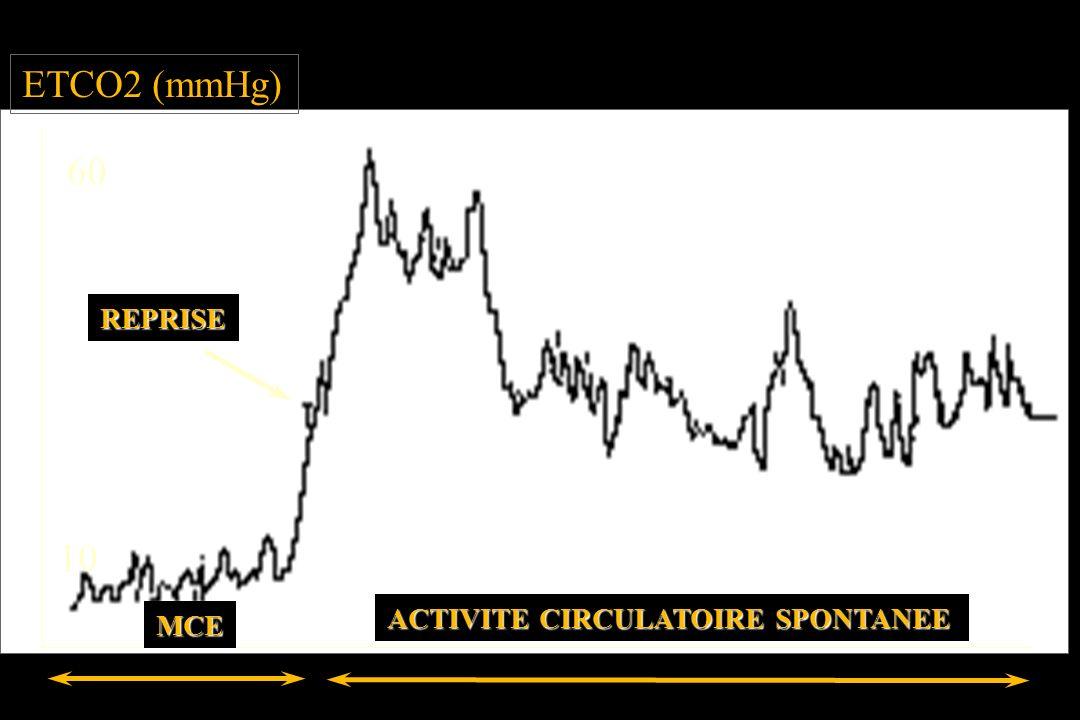 ETCO2 (mmHg) 60 10 MCE ACTIVITE CIRCULATOIRE SPONTANEE REPRISE
