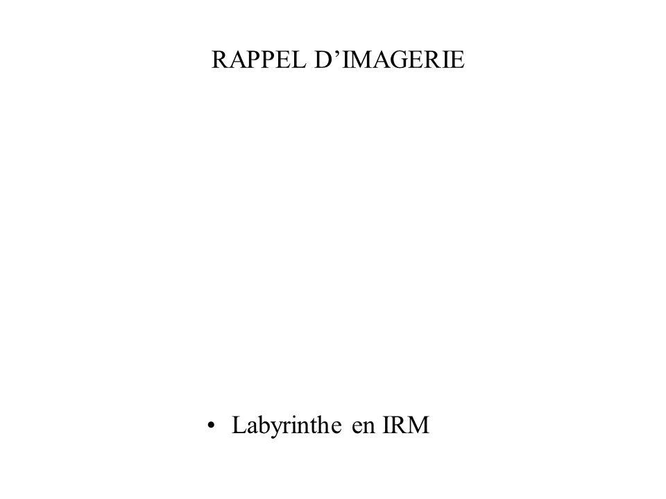 RAPPEL DIMAGERIE Labyrinthe en IRM