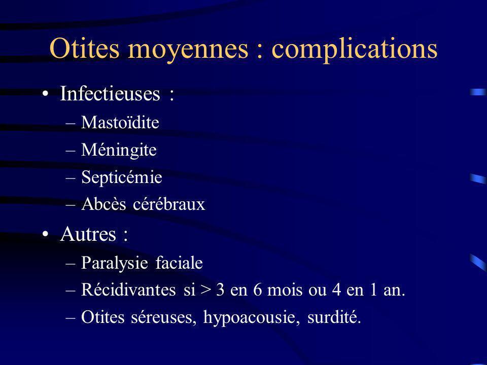 Otites moyennes : complications Infectieuses : –Mastoïdite –Méningite –Septicémie –Abcès cérébraux Autres : –Paralysie faciale –Récidivantes si > 3 en