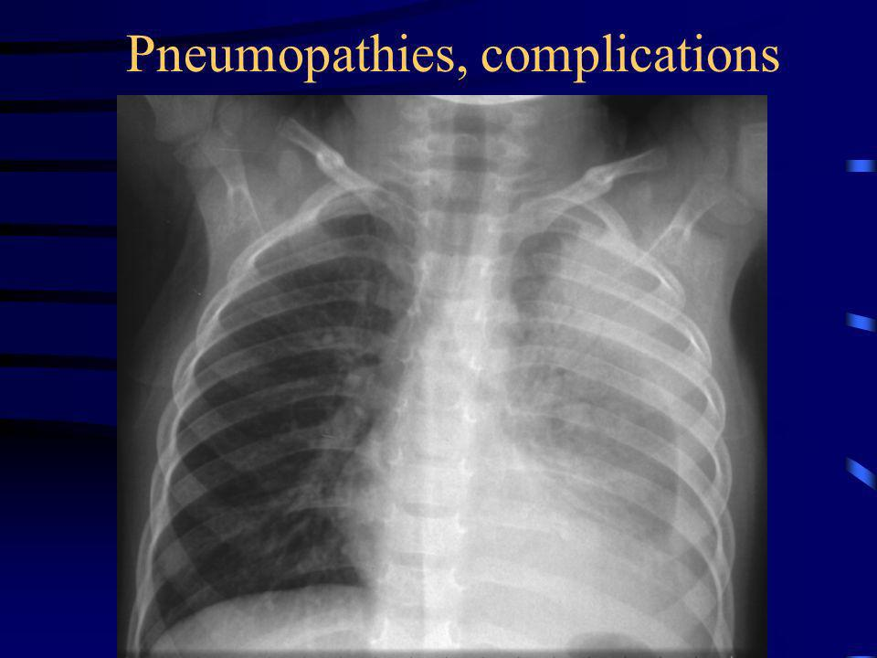 Pneumopathies, complications