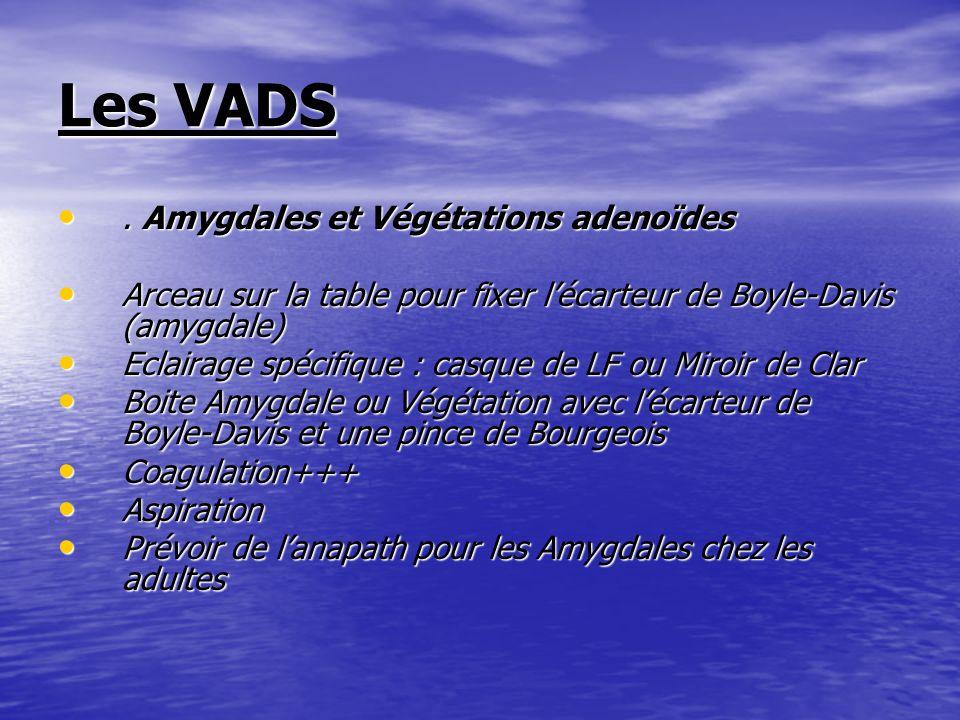 Les VADS. Amygdales et Végétations adenoïdes. Amygdales et Végétations adenoïdes Arceau sur la table pour fixer lécarteur de Boyle-Davis (amygdale) Ar