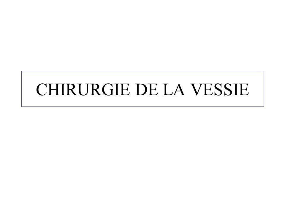 CHIRURGIE DE LA VESSIE