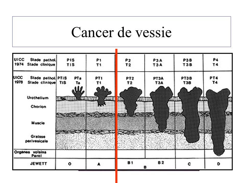 Cystectomie totale Indication : le cancer de vessie « infiltrant » Diagnostic –Hématurie –Echographie / cystoscopie –Résection endoscopique : tumeur infiltrante Bilan : –Scanner thoraco-abdomino-pelvien –Ganglions /Poumons/ –Os/Cerveau/Foie