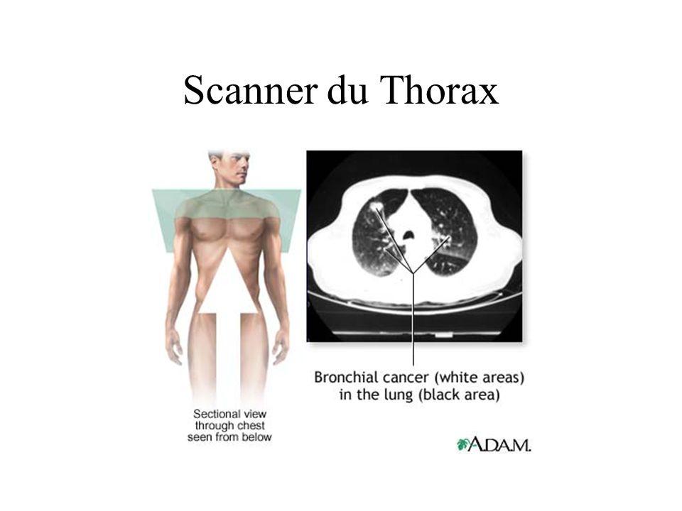 Scanner du Thorax