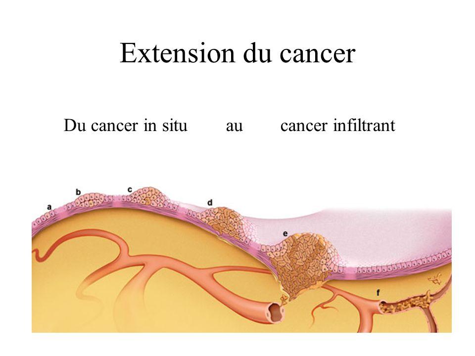 Dissemination par voie veineuse Drainage colique: Par le tronc porte Vers le foie Metas hepatiques