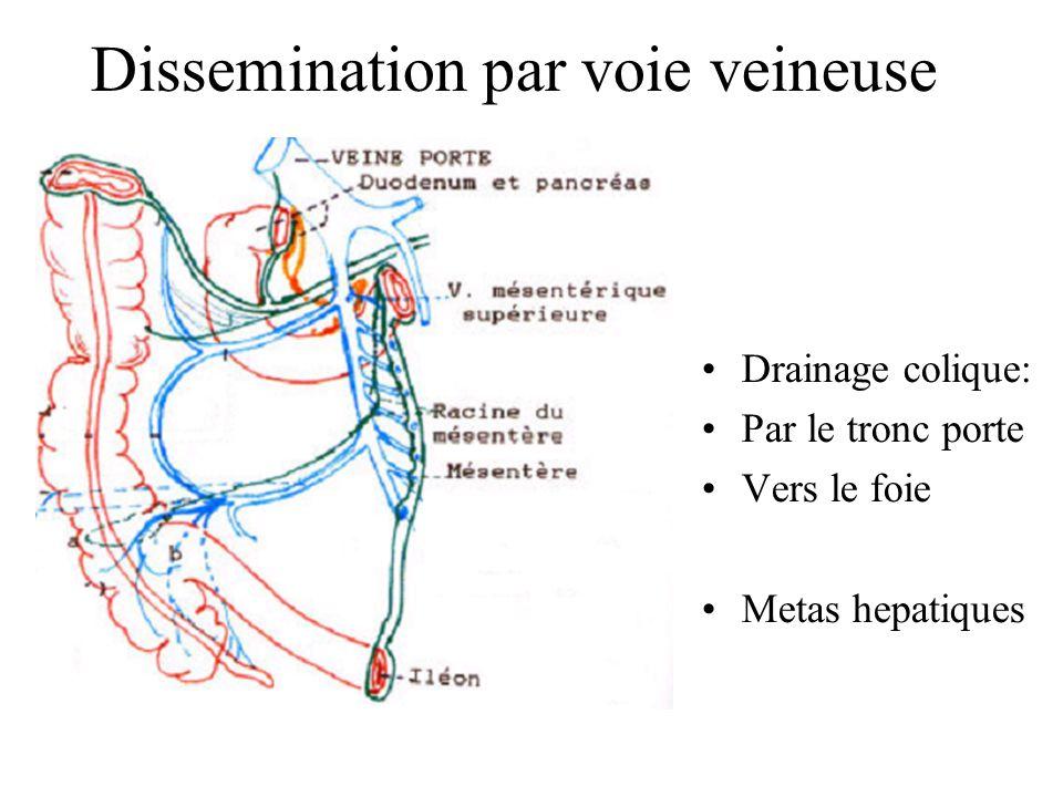 Dissemination par voie veineuse Drainage veineux via : la veine cave inf ou sup lartere pulmonaire Vers le poumon Metas pulmonaires