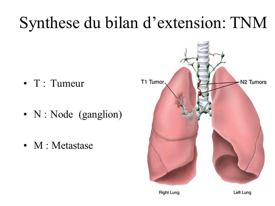 Synthese du bilan dextension: TNM T : Tumeur N :Node (ganglion) M : Metastase