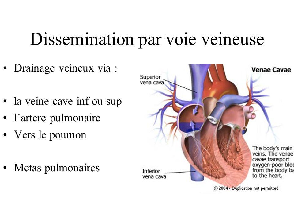 Metastases pulmonaires