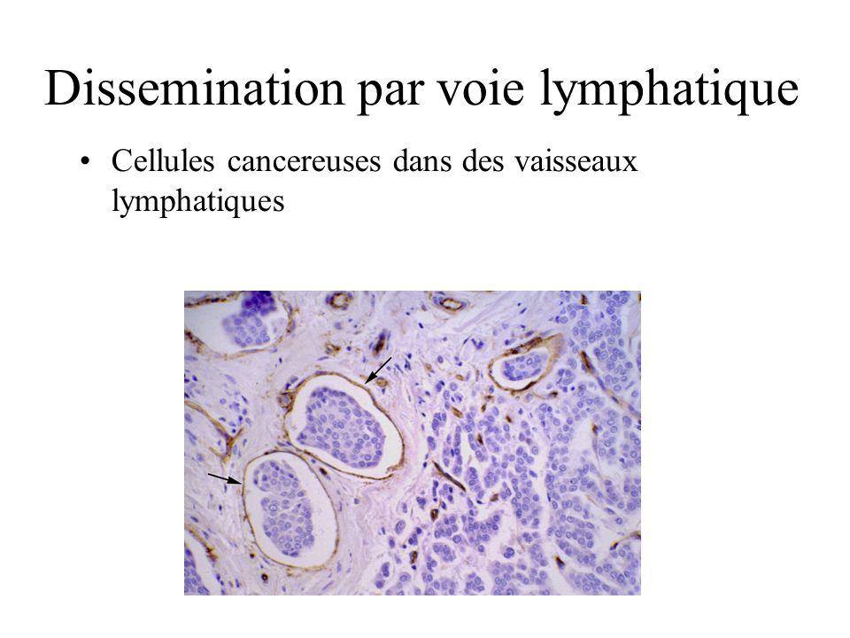 Dissemination par voie lymphatique Cellules cancereuses dans des vaisseaux lymphatiques