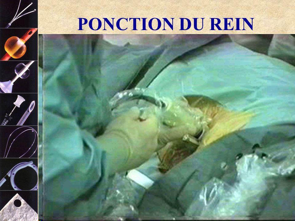 COOK ® PONCTION DU REIN