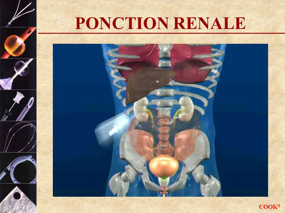 COOK ® PONCTION RENALE
