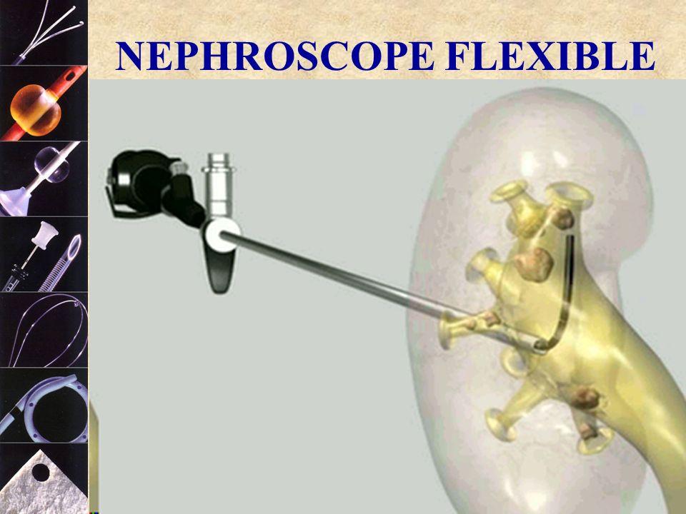 COOK ® NEPHROSCOPE FLEXIBLE