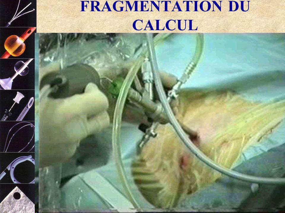 FRAGMENTATION DU CALCUL