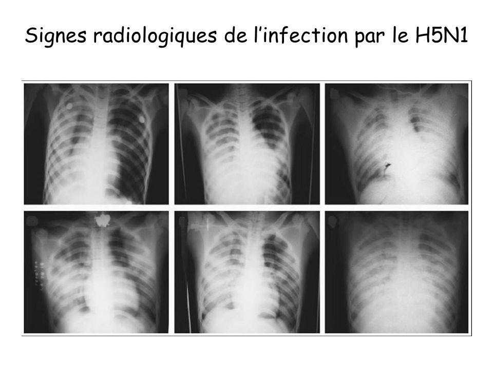 Signes radiologiques de linfection par le H5N1