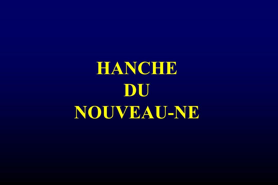 HANCHE DU NOUVEAU-NE