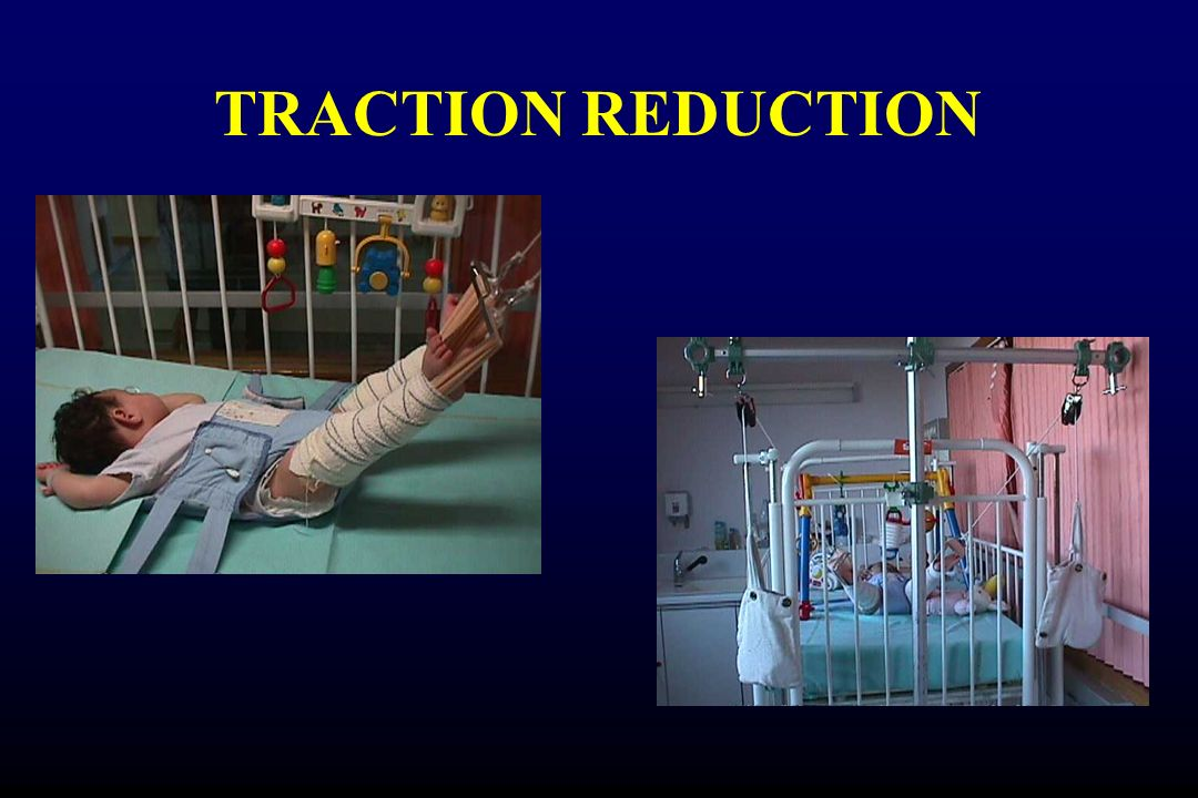 TRACTION REDUCTION