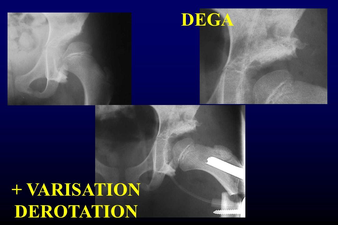 DEGA + VARISATION DEROTATION