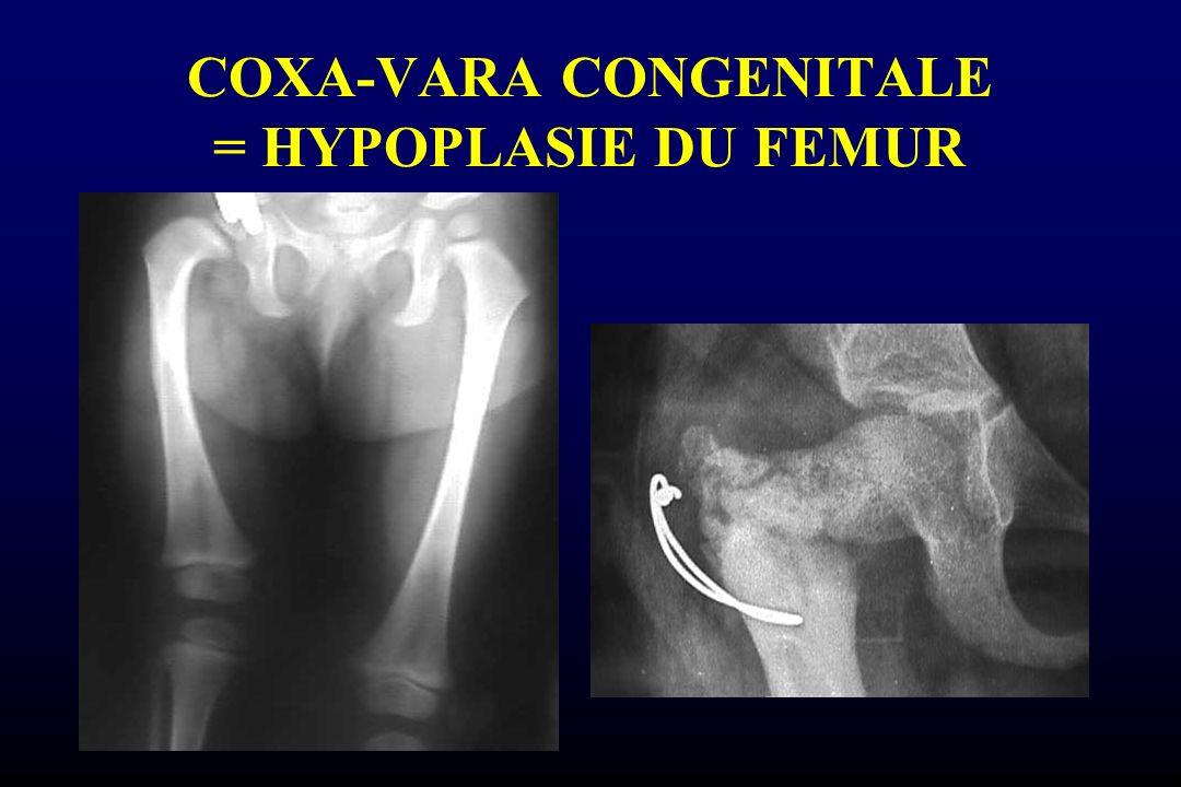COXA-VARA CONGENITALE = HYPOPLASIE DU FEMUR