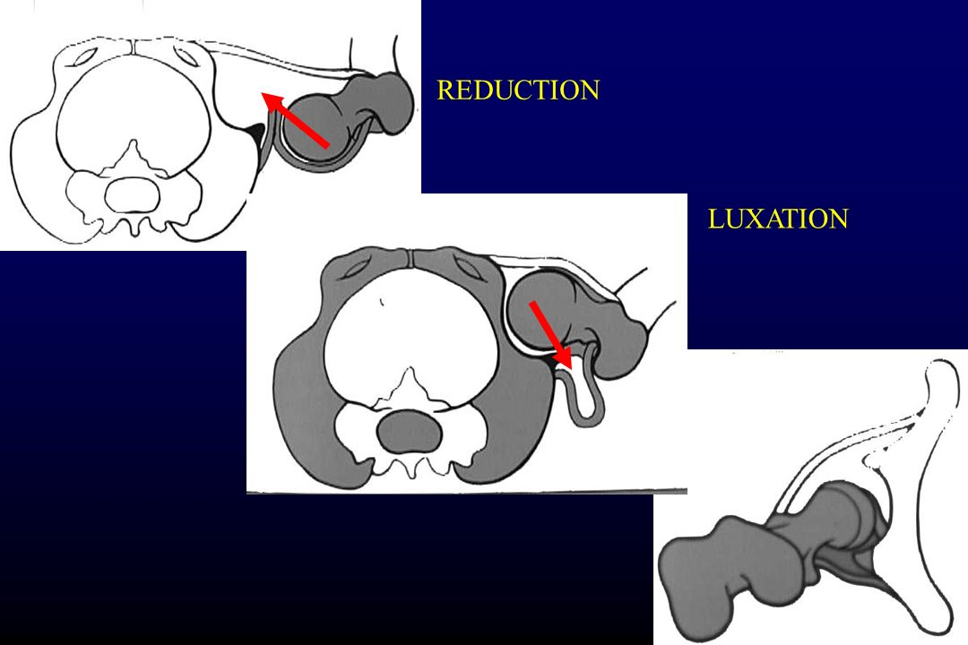 REDUCTION LUXATION
