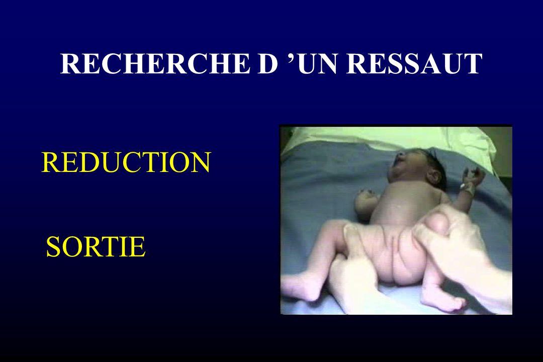 RECHERCHE D UN RESSAUT REDUCTION SORTIE