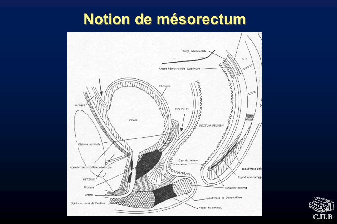 C.H.B Notion de mésorectum