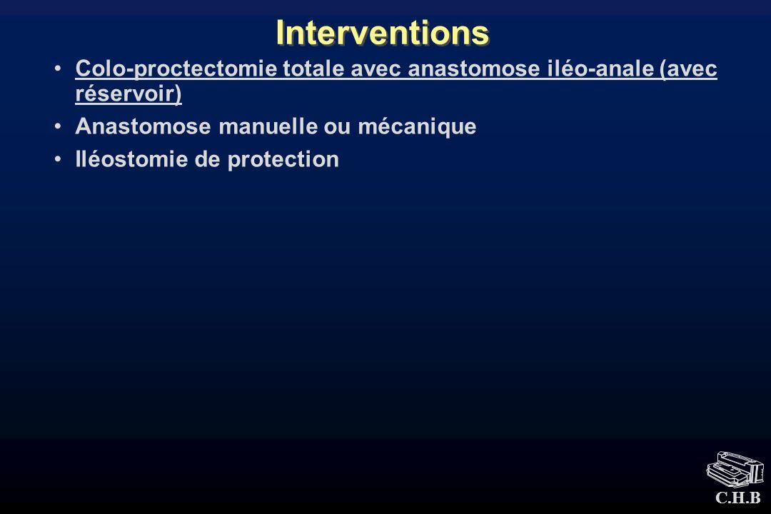 C.H.B Interventions Colo-proctectomie totale avec anastomose iléo-anale (avec réservoir) Anastomose manuelle ou mécanique Iléostomie de protection