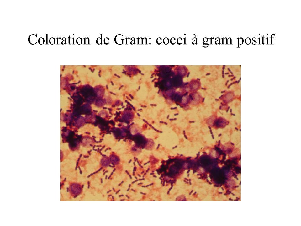 Coloration de Gram: cocci à gram positif