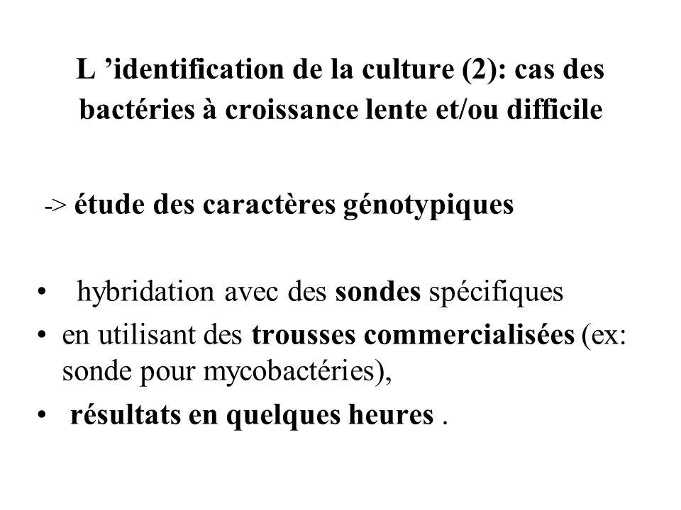 L identification de la culture (2): cas des bactéries à croissance lente et/ou difficile -> étude des caractères génotypiques hybridation avec des son