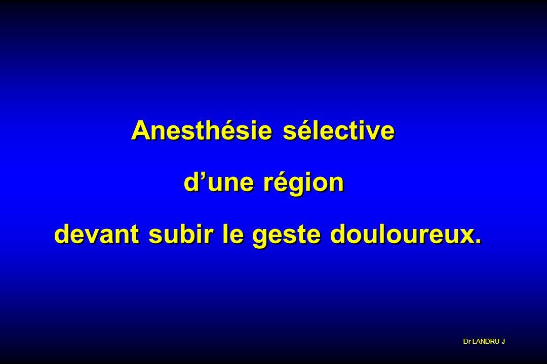 Dr LANDRU J Anesthésie sélective dune région devant subir le geste douloureux. Anesthésie sélective dune région devant subir le geste douloureux.