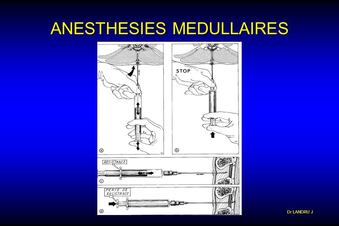 Dr LANDRU J ANESTHESIES MEDULLAIRES PERIDURALE