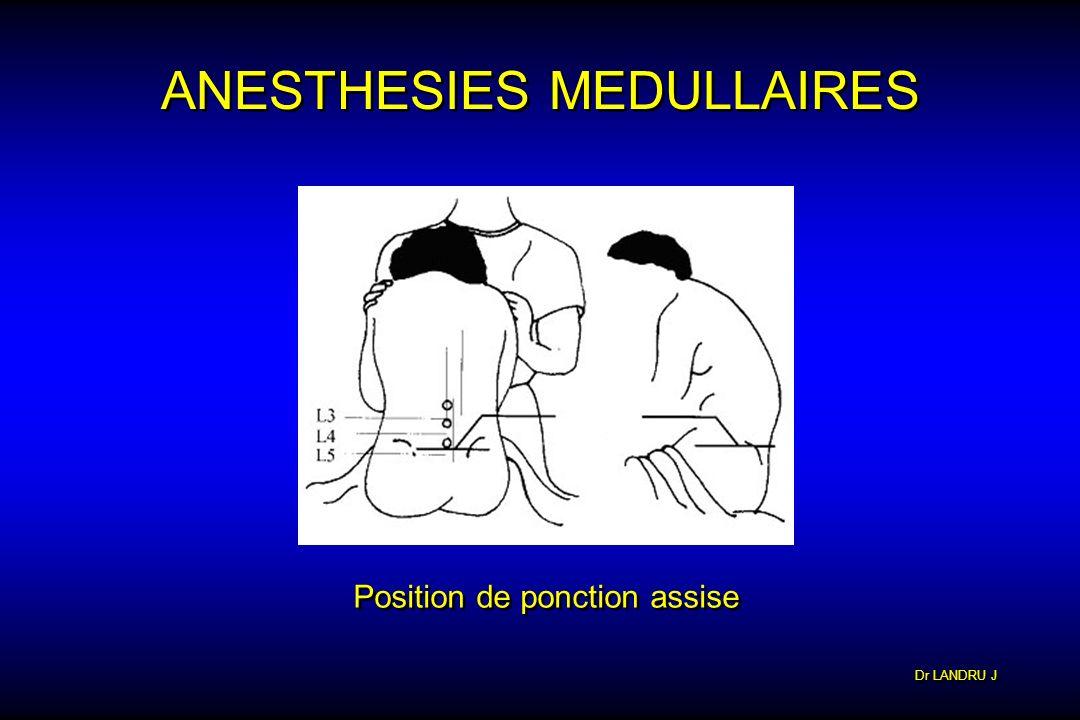 Dr LANDRU J ANESTHESIES MEDULLAIRES Position de ponction assise