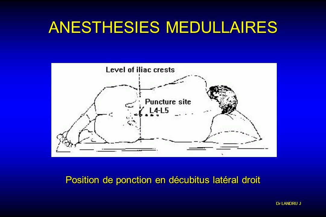 Dr LANDRU J ANESTHESIES MEDULLAIRES Position de ponction en décubitus latéral droit