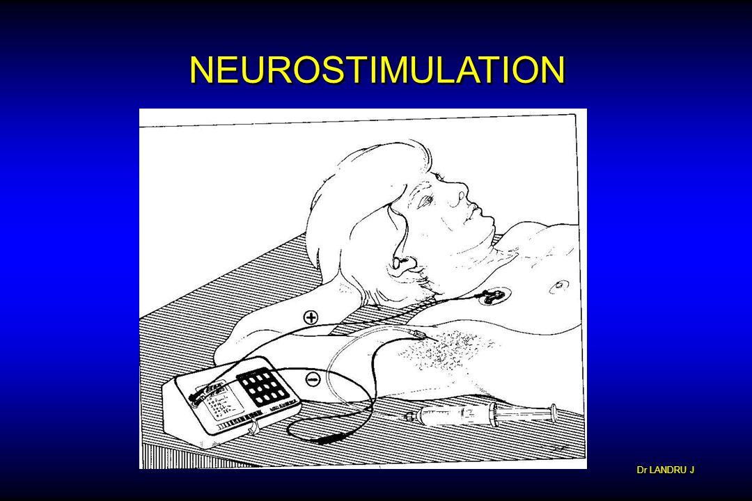 Dr LANDRU J NEUROSTIMULATION